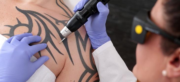Laserowe Usuwanie Tatuażu Cena Wskazania Zabieg